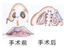 鼻孔狭窄整形