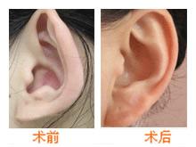 杯状耳整形